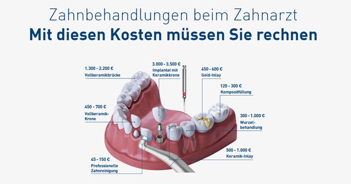 DFV Zahnarzt Kosten Übersicht